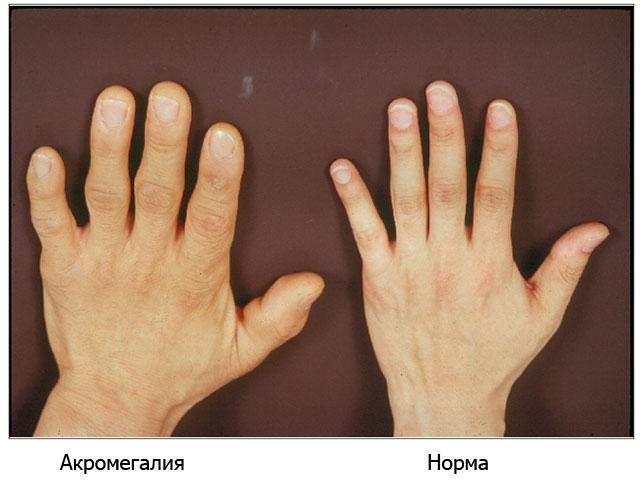 рука человека с акромегалией