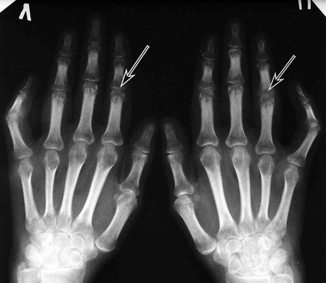 рентгенограмма артроз пальцев рук 2 стадии