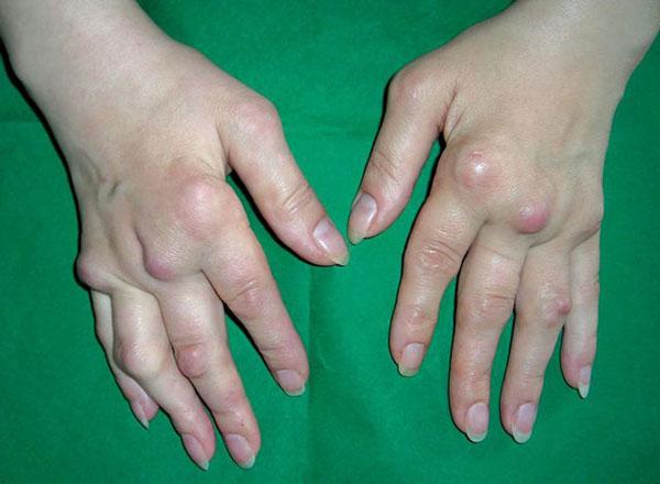 запущенный артроз пальцев рук