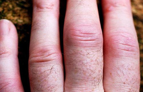 отек и воспаление пораженных артрозом суставов пальцев рук