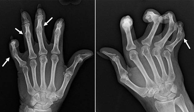 анкилоз межфаланговых суставов на рентгенограмме
