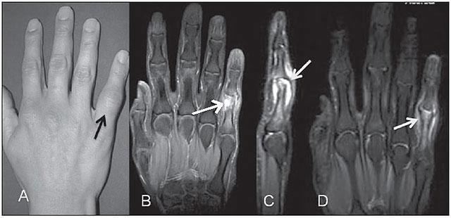 МРТ при артрозе суставов кисти