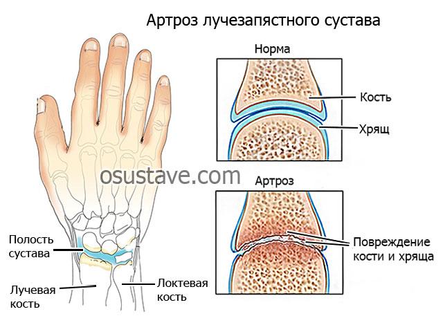 Артроз лучезапястного сустава 1 степени как и чем лечить