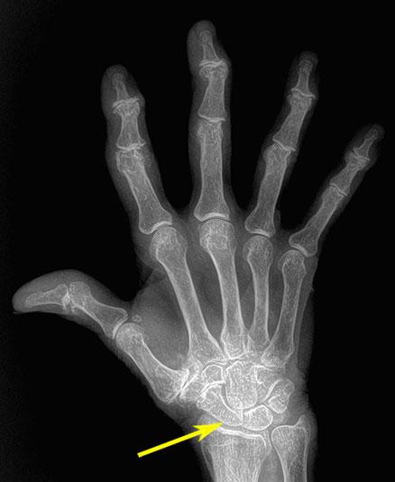 рентген лучезапястного сустава с артрозом