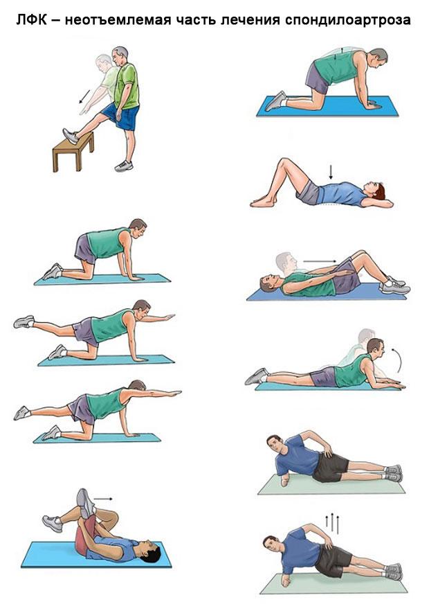 примеры упражнений лечебной физкультуры при спондилоартрозе