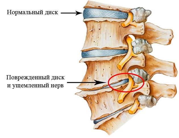 сдавливание спинномозгового нерва