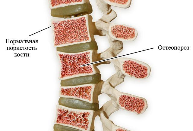 позвонки в норме и при остеопорозе