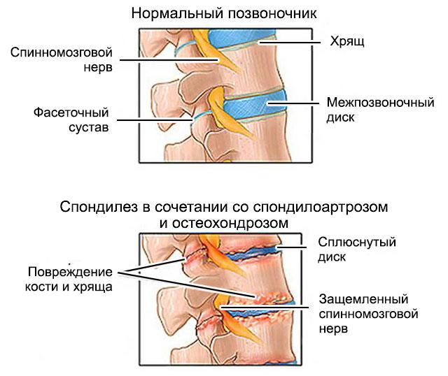 спондилез в сочетании с остеохондрозом и спондилоартрозом
