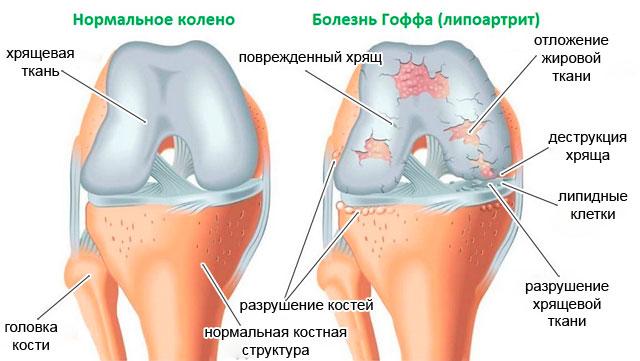 сравнительная характеристика строения колена в норме и при болезни Гоффа