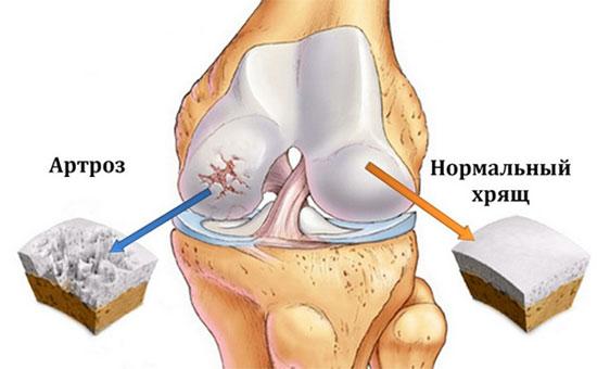 различия строения хряща коленного сустава в норме и при артрозе