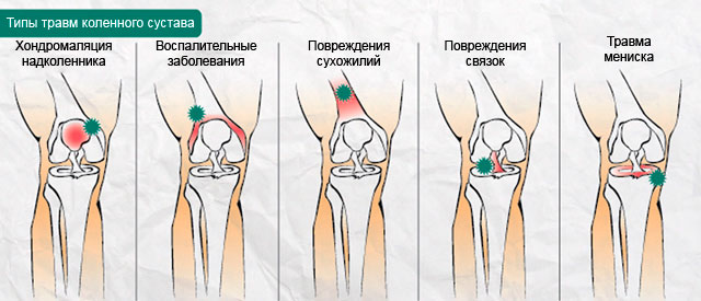 типы травм коленного сустава