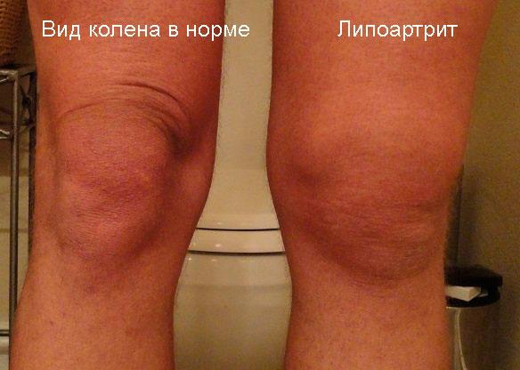 внешний вид колена в норме и при липоартрите