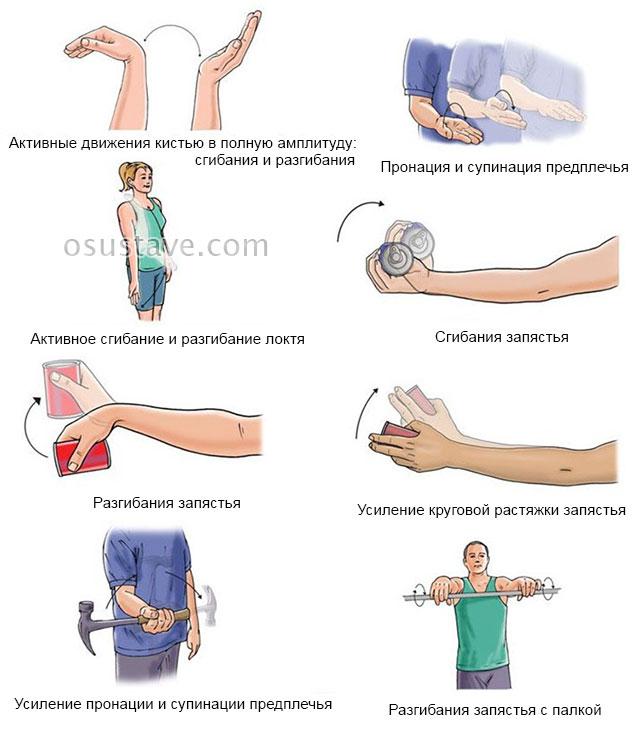 упражнения на мышцы предплечья после эпикондилита