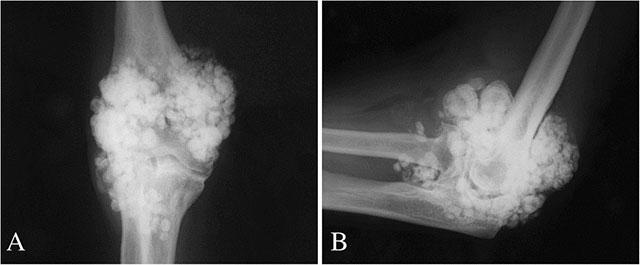 рентген снимок сустава при синовиальном хондроматозе
