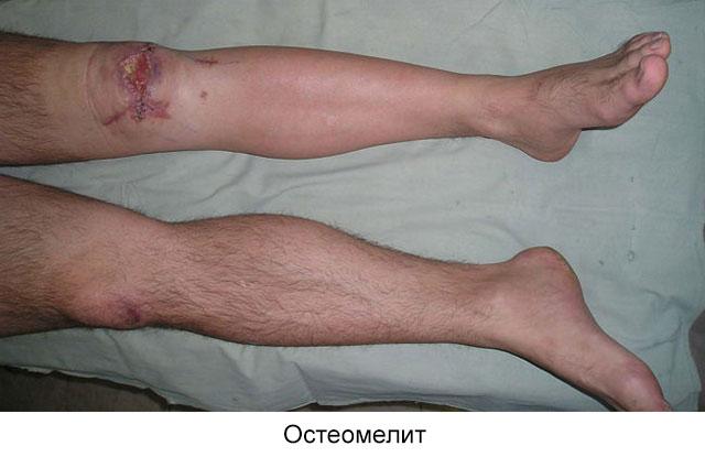 остеомелит