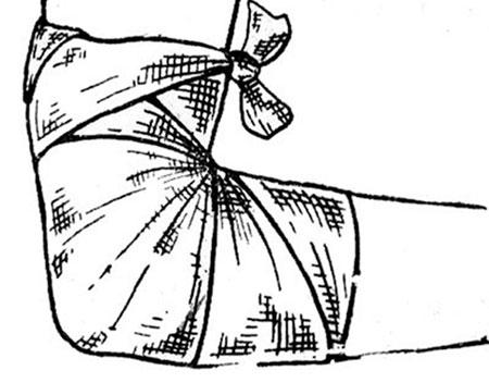 повязка на локтевом суставе