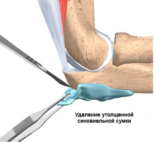 хирургическое лечение бурсита
