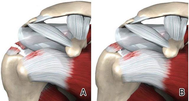повреждение связочного аппарата плеча