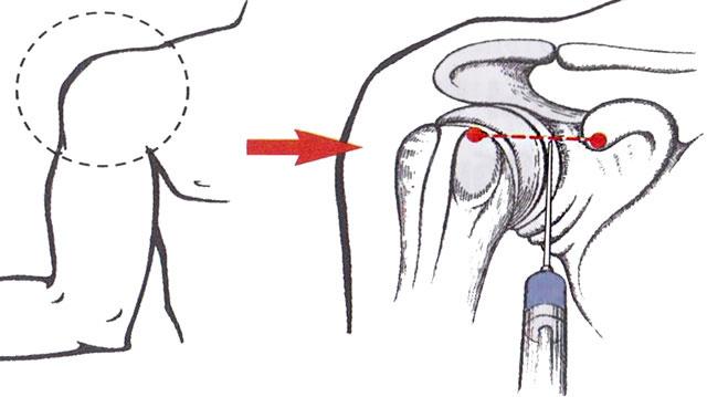 схема проведения блокады плеча