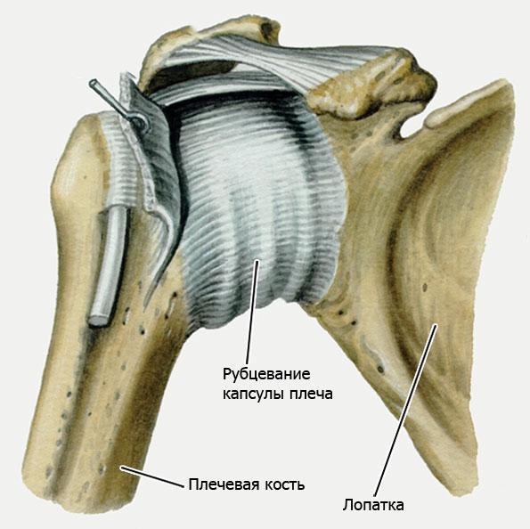 рубцевание капсулы плеча