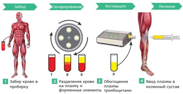 внутрисуставное введение плазмы