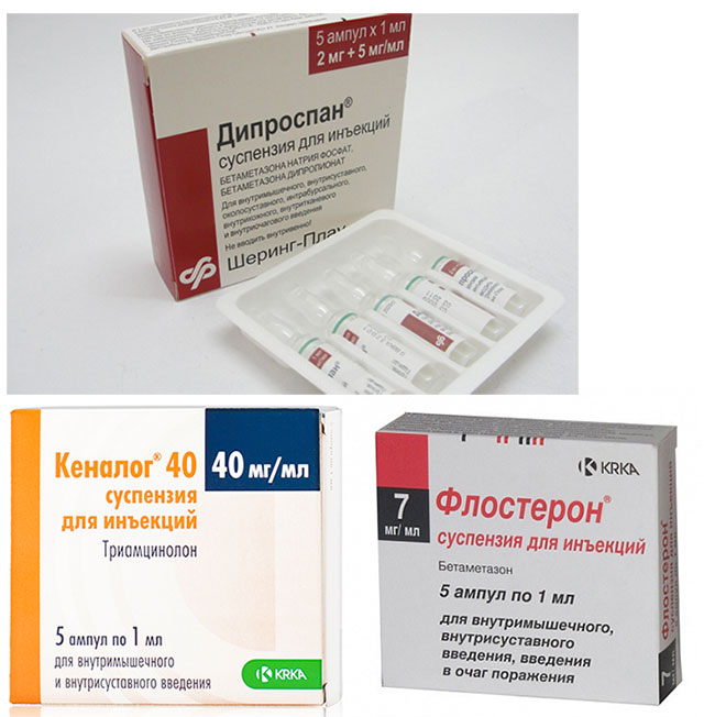 препараты Дипроспан, Флостерон, Кеналог