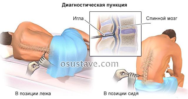 диагностическая пункция