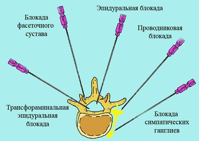 схематическое изображение различных видов блокад позвоночника