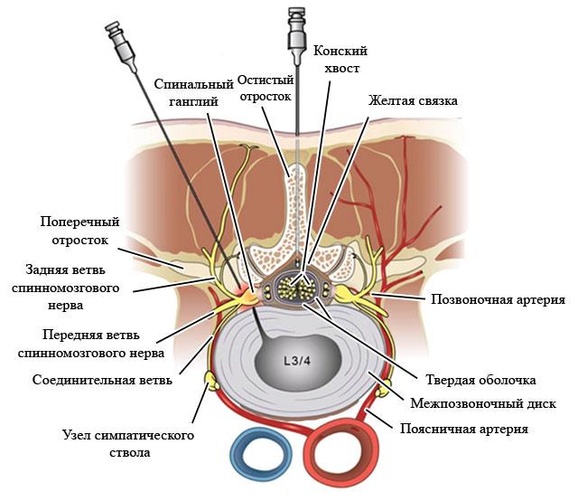 техника выполнения интерламинарной и трансфораминальной эпидуральной инъекции стероидов
