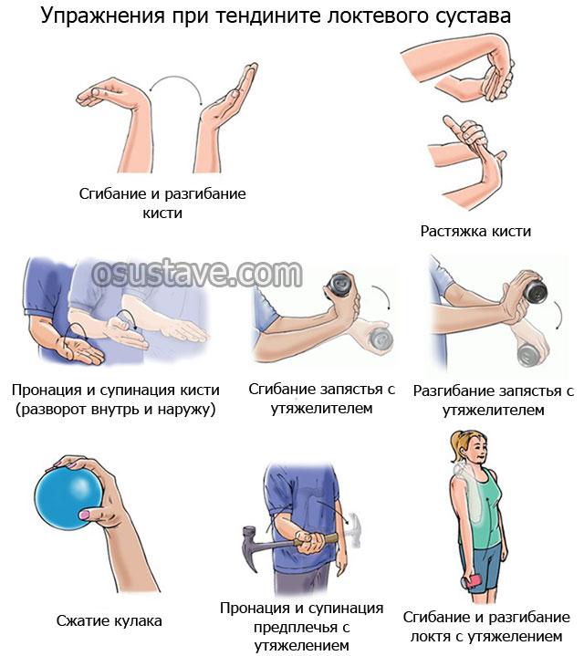 примеры упражнений при тендините локтевого сустава