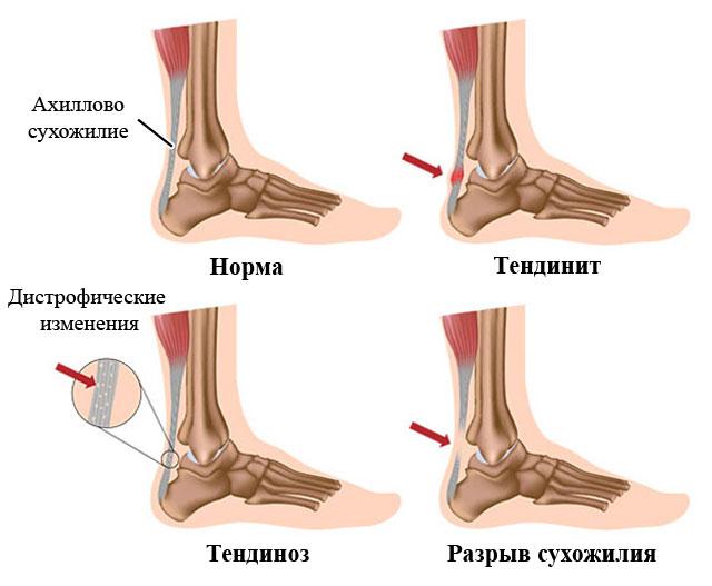 патологии ахиллова сухожилия