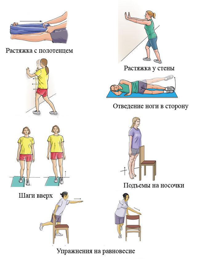 примеры упражнений лечебной физкультуры для восстановления функции ахиллова сухожилия