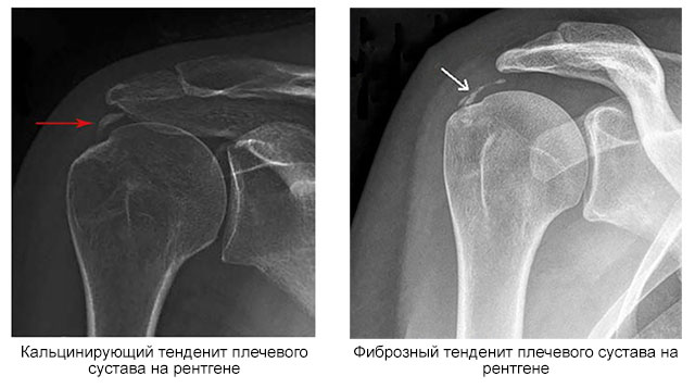 кальцинирующий и фиброзный тендинит на рентгене