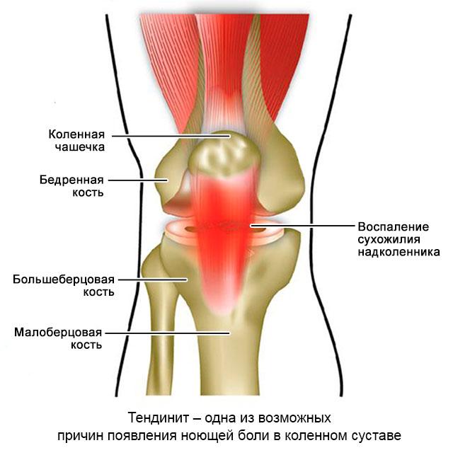 Тендиноз коленного сустава что это такое