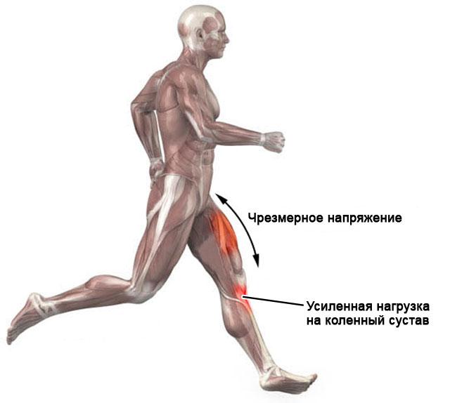 нагрузка на коленный сустав при беге