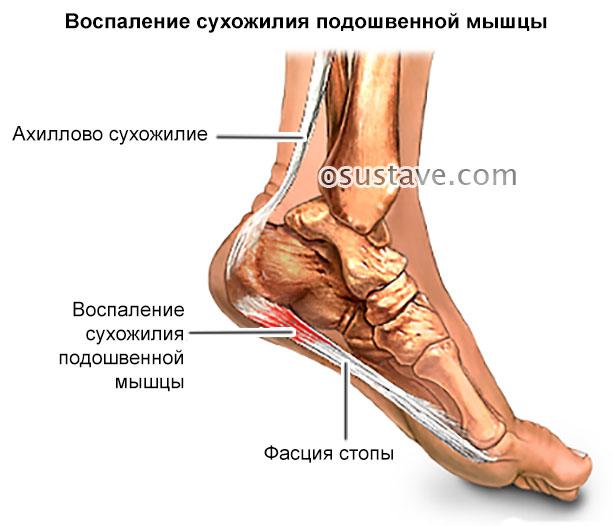 воспаление сухожилия подошвенной мышцы