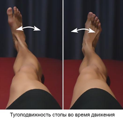 тугоподвижность стопы