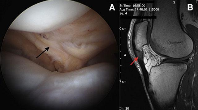 снимки колена во время процедуры артроскопии