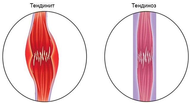 отличия сухожилия при тендините и тендинозе