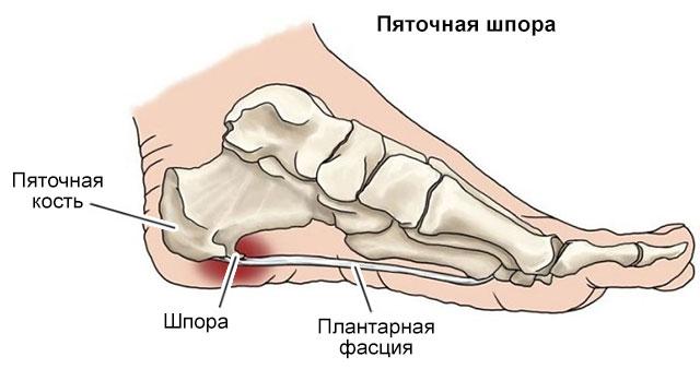 шпоры на пяточной кости