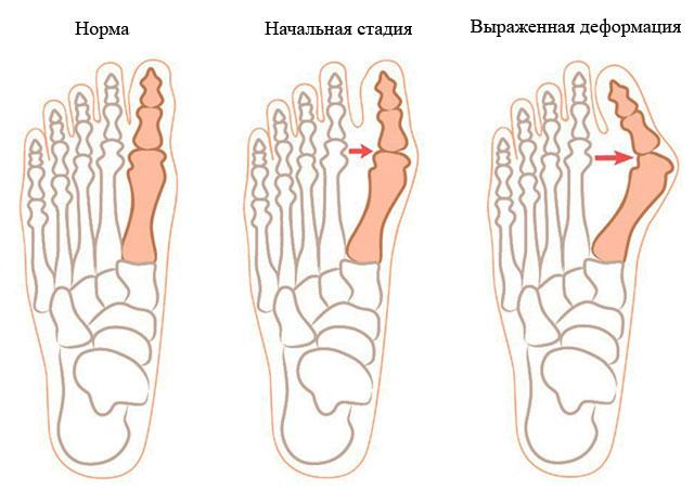 две стадии вальгусной деформации стопы