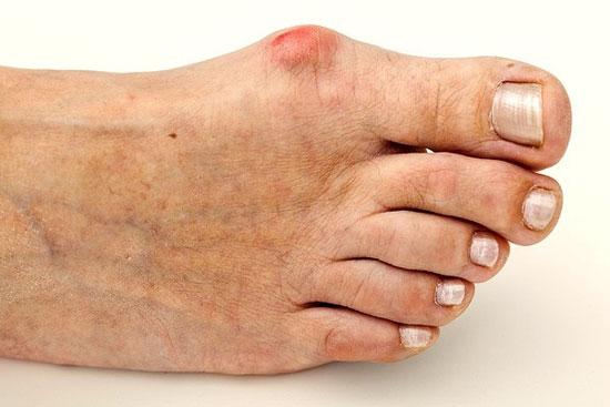 воспаление синовиальной сумки большого пальца стопы