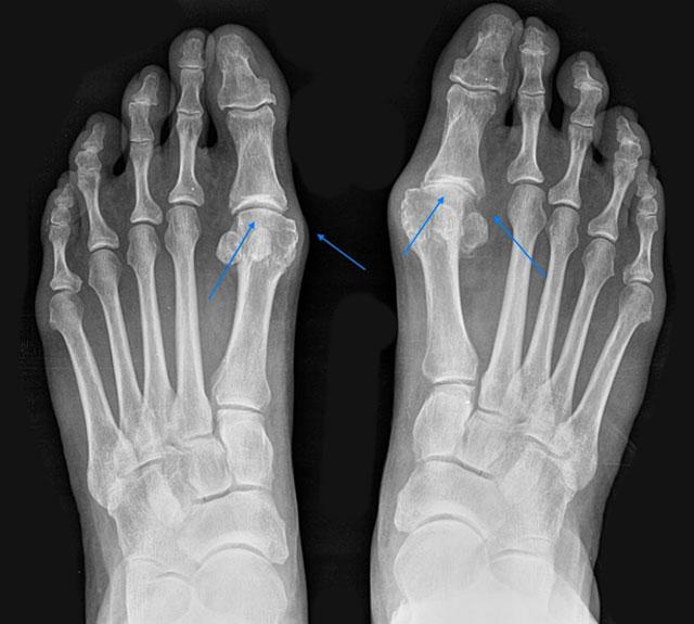 рентгенограмма стоп