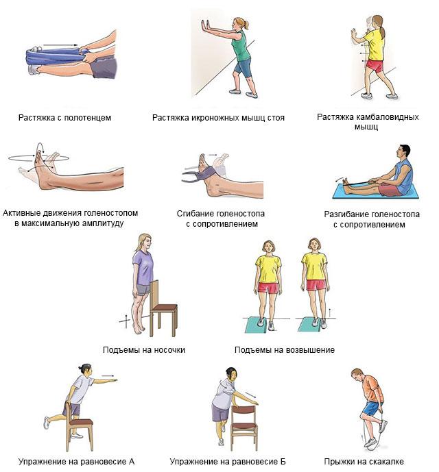 примеры упражнений для восстановления голеностопа
