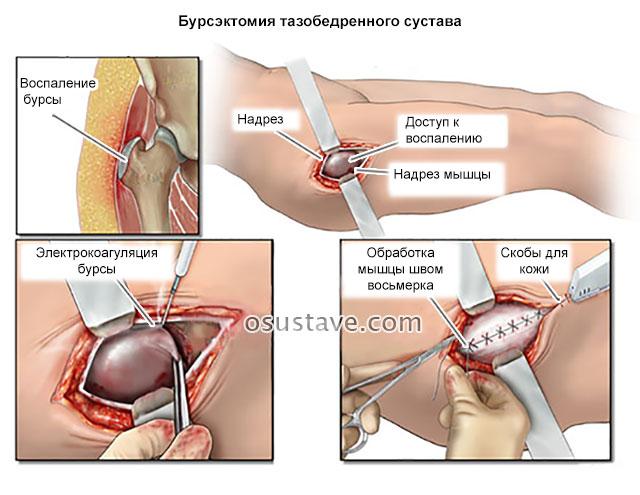 бурсэктомия