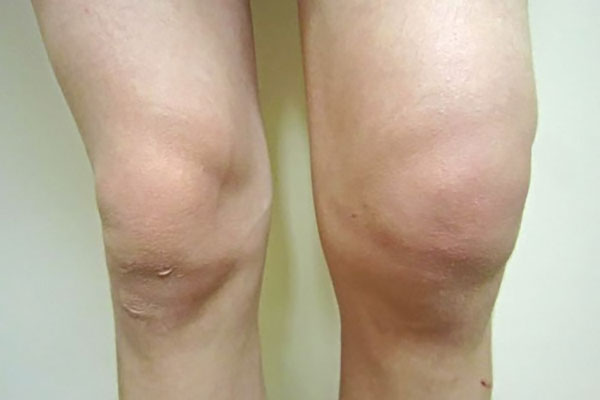 здоровый коленный сустав и пораженный бурситом