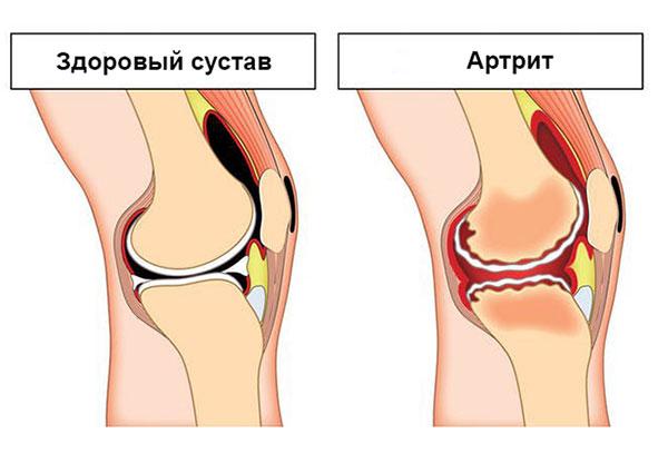 воспаления коленного сустава, приводящие к бурситу