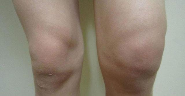 сильный отек левого коленного сустава
