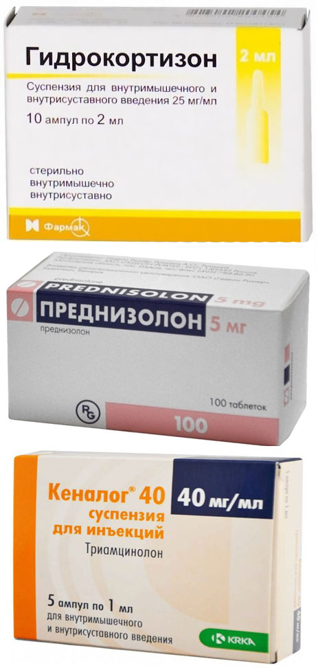 Преднизолон, Гидрокортизон и Кеналог