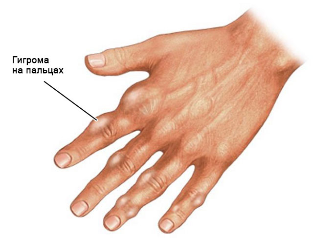 гигрома на пальцах